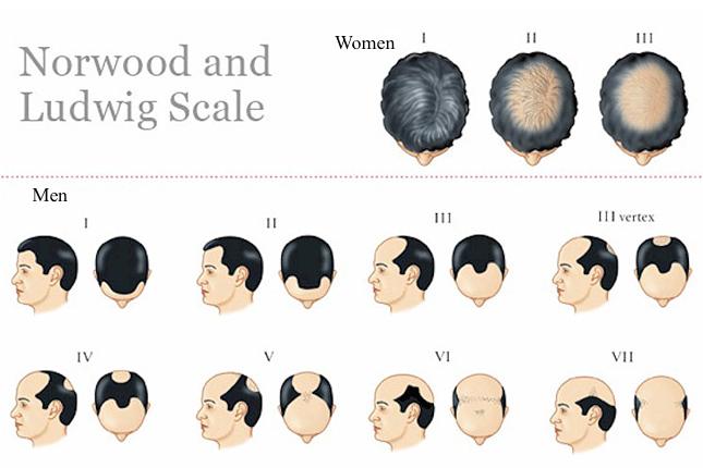 Cause perte cheveux femme